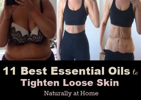 11 Best Essential Oils to Tighten Skin Loose Skin Naturally at Home